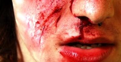 Tunisie – Soliman : Un élève casse le nez de son professeur