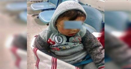 Tunisie – Sousse : L'hôpital déclare l'admission d'un bébé maltraité par sa mère