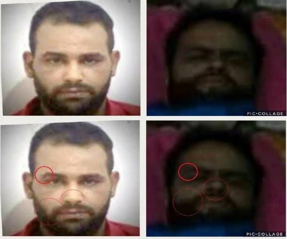 Tunisie: Photo de Nadhir Ktari blessé dans un hôpital en Libye, le SNJT se prononce