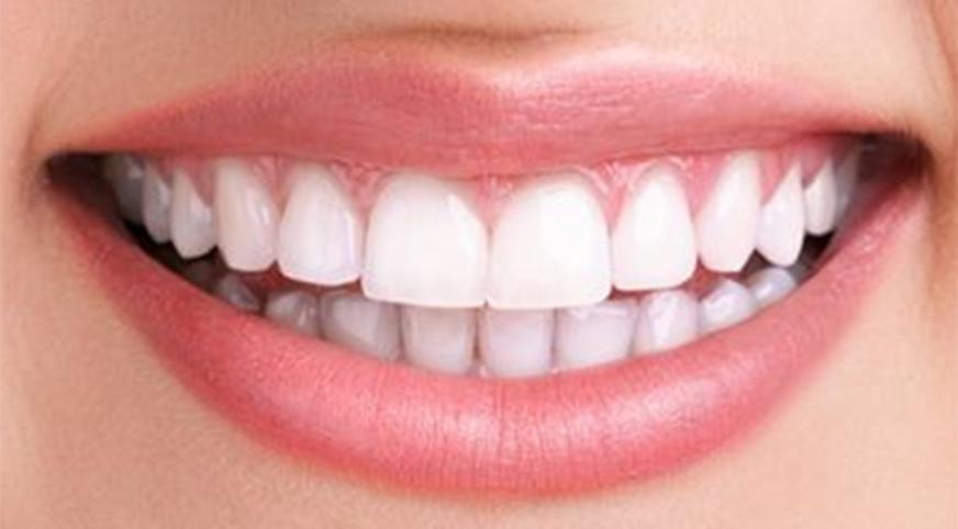 TN beauté : Des astuces naturelles pour blanchir les dents