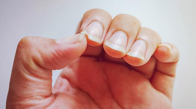 TN beauté : Ongles cassants ? Voici 3 astuces naturelles pour remédier à ce problème