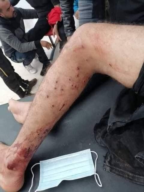 Ain Skhouna-Dernière minute [Audio]: Les émeutes tribales s'intensifient!